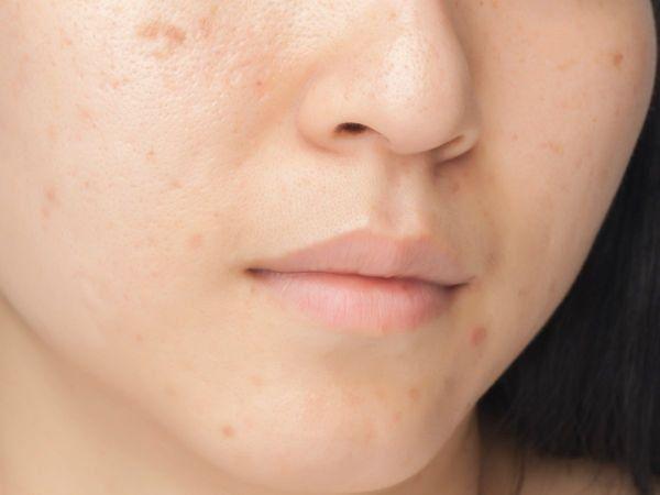 Oily Skin, Oily Face, எண்ணெய் வடியும் முகம்